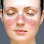 lupus_facial_rash